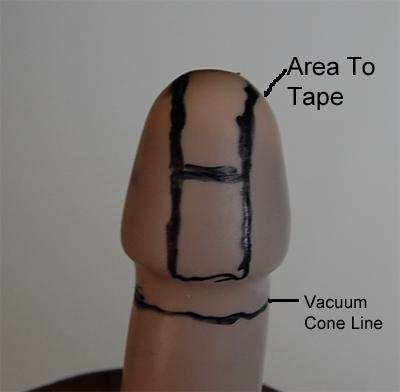 Penis hole enlargement